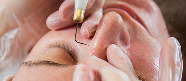 Rachel Cross Beauty - thread vein removal